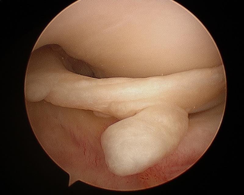 Knee Arthroscopy - Risks & Treatment | ACL Reconstruction Sydney