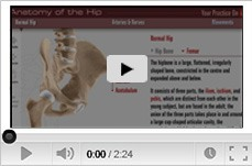 Multimedia Patient Education - Sydney Hip and Knee - Dr.Michael Solomon Dr.David Broe